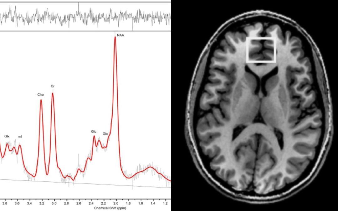 Principios Neurobiológicos de los Potenciales Terapéuticos de los Compuestos Psicodélicos